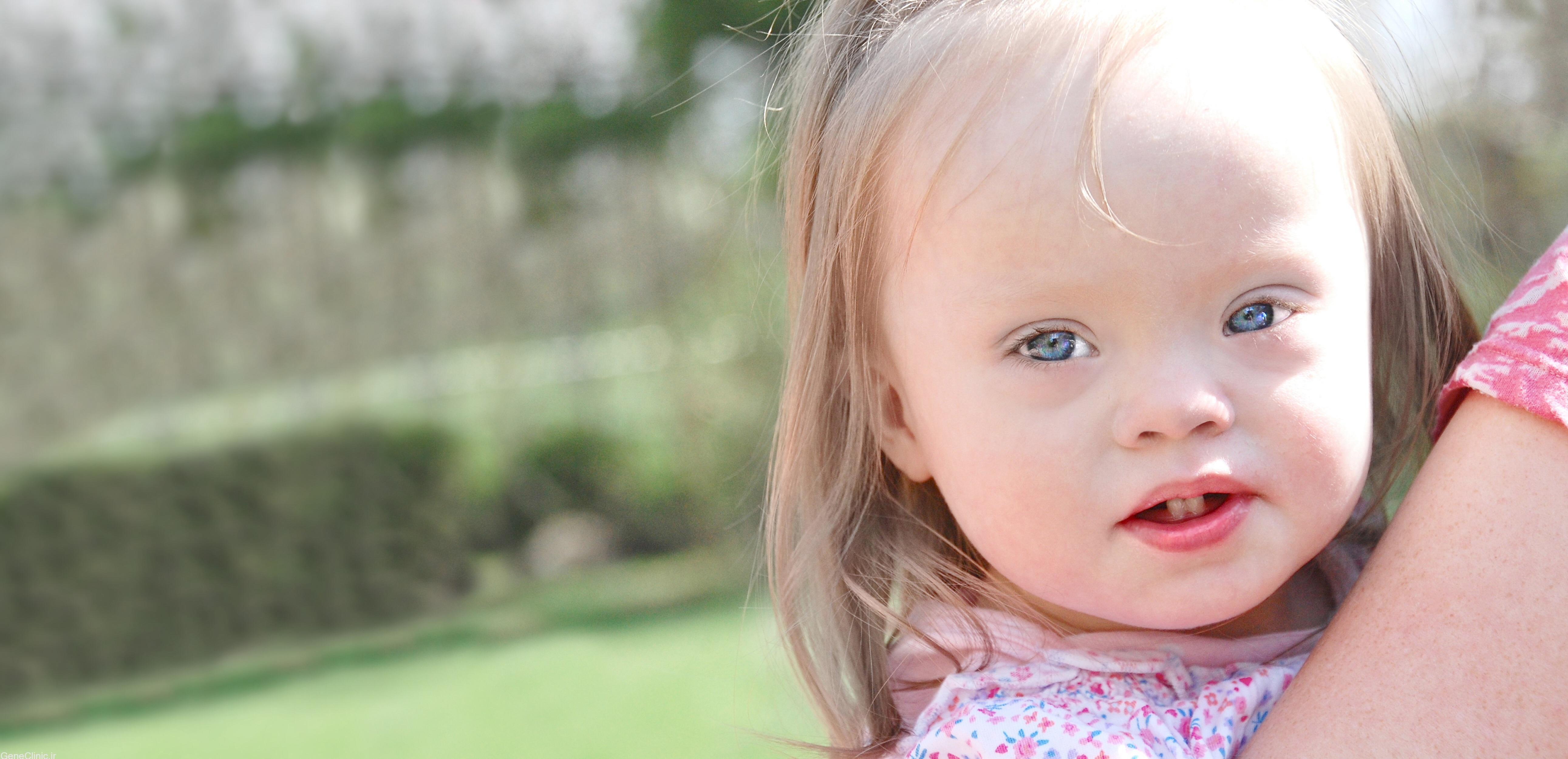 احتمال تکرار سندرم داون در خانواده چقدر است