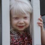فرزندم به بیماری  زالی (آلبینیسم) مبتلاست آیا دارویی برای درمان این بیماری دردسترس والدین هست؟